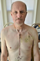 57 Bare chest waist up zipper pull