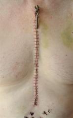 58 Zipper pull close up 2