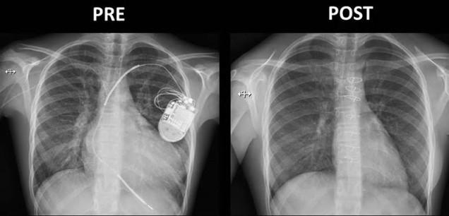 75 Pre post transplant x-ray